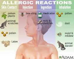 holistic medicine for allergies